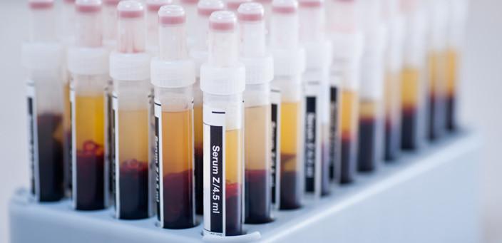 test de laboratoire médical