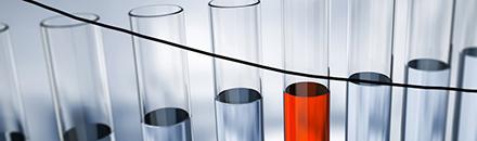 VIH par dépistage sanguin ELISA - Analyses médicales clinique Myrrha Santé
